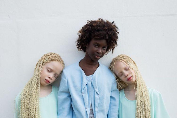 Na zdjęciu są trzy siostry - 2 Albinoski i jedna ciemnoskóra dziewczyna. Dwie Bliżniaczki stoją po dwóch stronach trzeciej siostry i mają głowy oparte na jej ramieniach. Mają zamknięte oczy. Ciemnoskóra dziewczyna patrzy się prosto do kamery i lekko się uśmiecha.