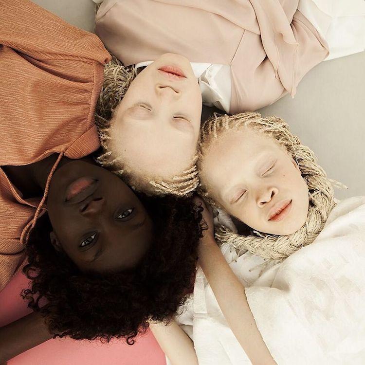 Na zdjęciu są trzy siostry, dwie Albinoski i jedna ciemnoskóra dziewczyna. Leżą one i mają złączone głowy. Dwie bliźniaczki mają zamknięte oczy, a ciemnoskóra siostra ma je otwarte.