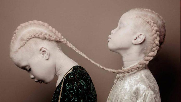 Zdjęcie przedstawia bliżniaczki-albinoski, które stoją jedna za drugą. Obie mają warkocze. Jedna dziewczynka ma opuszczoną głowę, a jeden warkocz spoczywa na ramieniu drugiej. Druga dziewczynka ma głowę podniesioną.