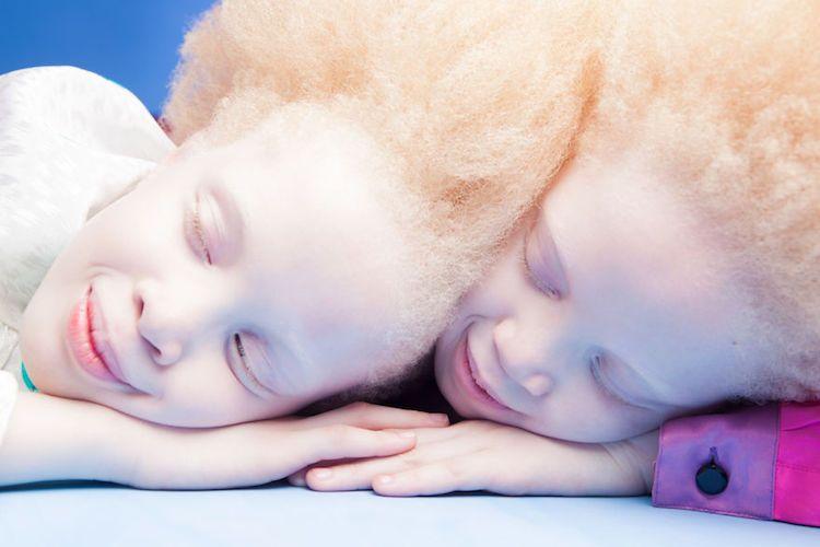 Na zdjęciu widzimy z bliska twarze dziewczynek. Leżą one, są do siebie przytulone i mają dłonie jednak na drugiej.