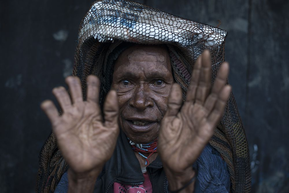 Na zdjęciu jest kobieta z plemienia Dani zamieszkującego Papue Nową Gwineę. Kobieta w ofierze bliskim, którzy zmarli podarowała pięć cztery palce. Na pierwszym planie są jej dwie dłonie, z czego prawa jest niemalże w całości pozbyta kończyn.