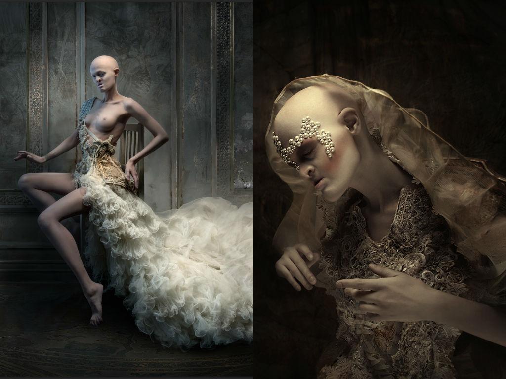 Dwie fotografie kolorowe utrzymane w ciemnych, stonowanych barwach. Po lewej stronie soi modelka z zdeformowaną twarzą i lysą głową, w białej sukni do ziemi, spod sukni wystaje jej lewa pierś oraz nogi. Po prawej stronie ta sama modelka. Portret w bardzo zdobrej kremowej sukni, na głowie ma welon a nad brwiami przyklejone białe koraliki.