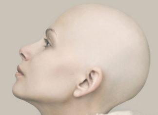 Fotografia portretowa utrzymana w beżowych kolorach. Na zdjęciu widać łysą kobietę, w naturalnym makijażu. Kobieta zwrócona jest lewym profilem, a jej głowa lekko uniesiona jest w górę.