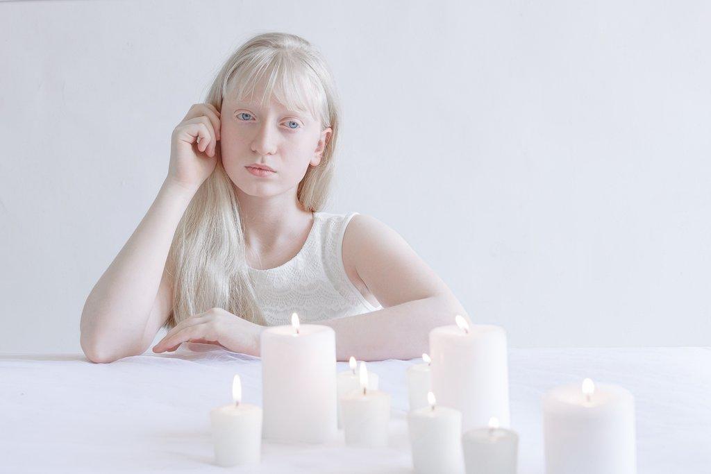 Fotografia kolorowa utrzymana w białych odcieniach. Na zdjęci widać dziewczynkę-albinos siedzącą przy białym stole. Prawą ręką podpiera głowę. Przed nią widać kilka palących się białych świec.