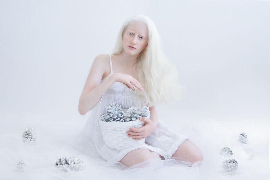 Fotografia kolorowa utrzymana w białych odcieniach. Na zdjęciu siedzi kobiet-albinos trzymająca biały kosz pełen srebrnych szyszek. Kobieta ubrana jest w białą sukienkę na ramiączkach.
