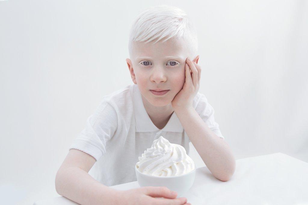 Fotografia kolorowa utrzymana w bialych odcienaich. Na zdjęciu widać siedzącego przy białym stole chłopca-albinosa. Lewą ręką podpiera głowę, a prawa położona jest na blacie. Przy prawej dłono widać białą miseczkę wypełnioną bitą śmietaną.