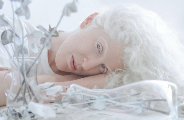 Fotografia kolorowa utrzymana w białych barwach. Na zdjęciu widać kobietę-albinosa, z błekitnymi oczami leżącą wśród białych kwiatów.