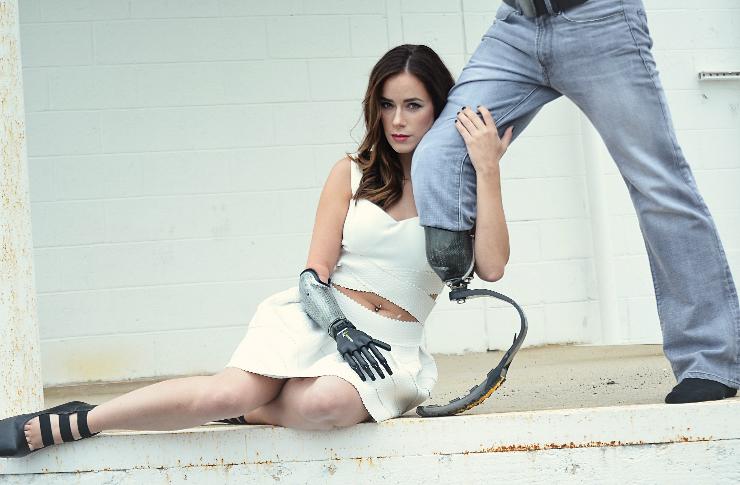 Model i modelka z protezą