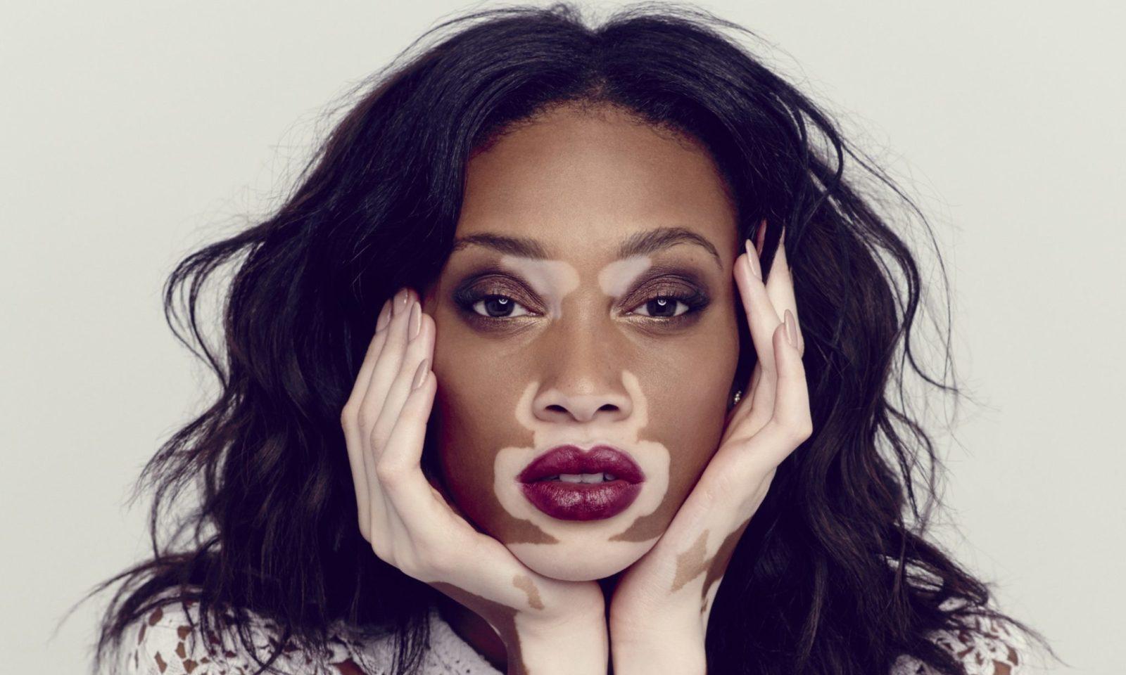 Fotografia portretowa, kolorowa. Na zdjęciu widać czarnoskórą modelkę chorującą na bielactwo. Na jej twarzy widać białe plamy w okolicy ust, pod brwiami oraz na dłoniach, którymi podpiera brodę. Modelka ma ciemne włosy do ramion.