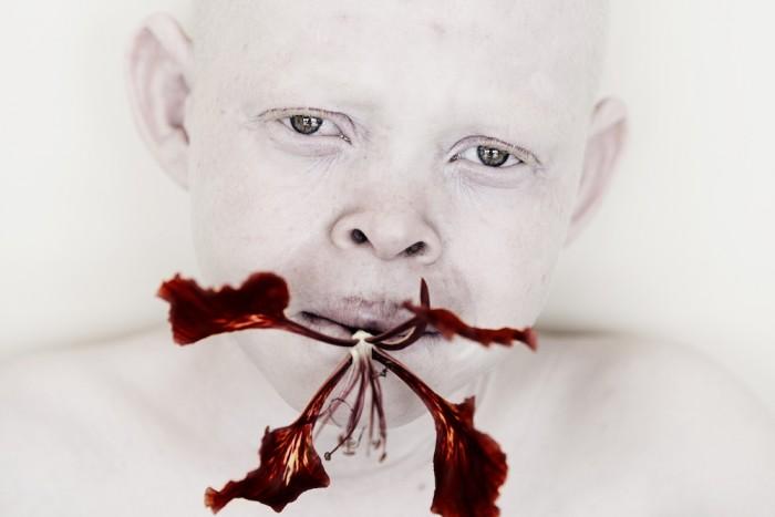 Portret albinosa z kwiatem w ustach.