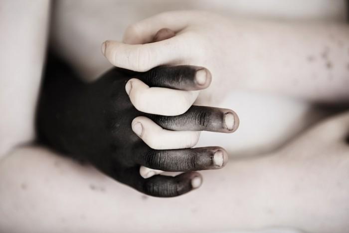 Uścisk dłoni zdrowego Tanzańczyka i albinosa.