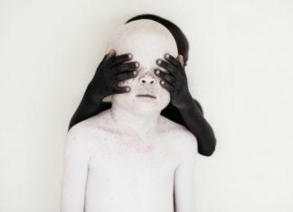 Czarne dziecko zakrywa albinosowi oczy.