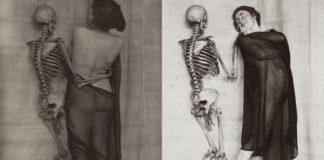 Dwie fotografie przedstawiające kobiety pozujące ze szkieletami