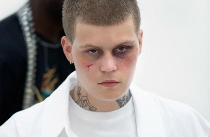 Chłopak ubrany na biało z podbitym okiem