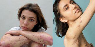 Dwa zdjęcia przedstawiające dwie kobiety z bliznami na ciele