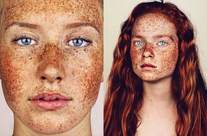 Dwa portrety dziewczyn z piegami na twarzy