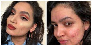 Dwa zdjęcia dziewczyny z trądzikiem z makijażem i bez makijażu