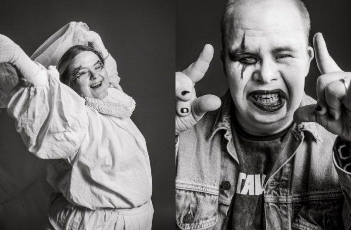 Czarno-białe zdjęcia dwóch osób z zespołem Downa