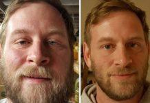 Dwa zdjęcia przedstawiające twarz tego samego mężczyzny