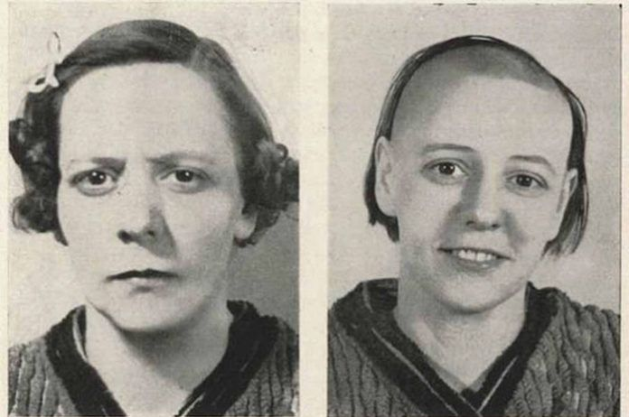 Dwa zdjęcia tej samej kobiety - skrzywionej i uśmiechniętej