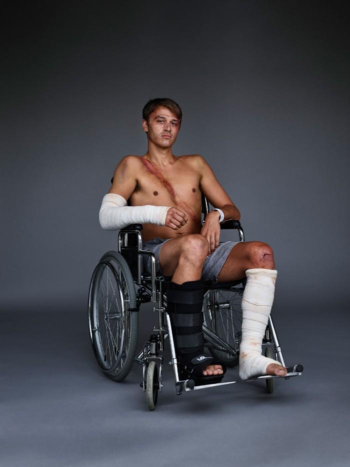 Mężczyzna z ranami po wypadku samochodowym na wózku inwalidzkim
