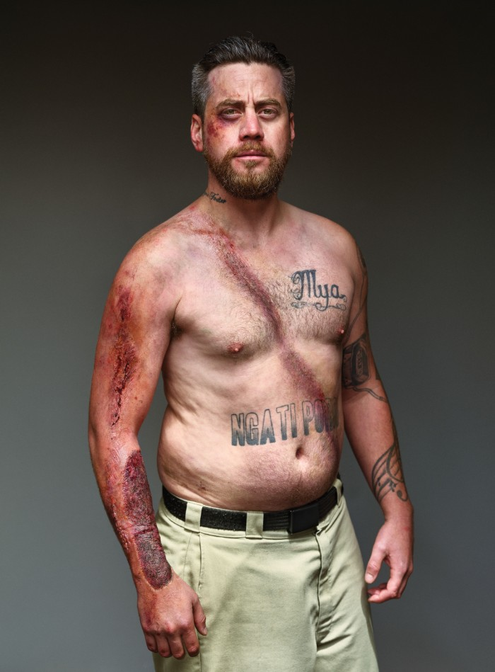Mężczyzna z ranami po wypadku samochodowym