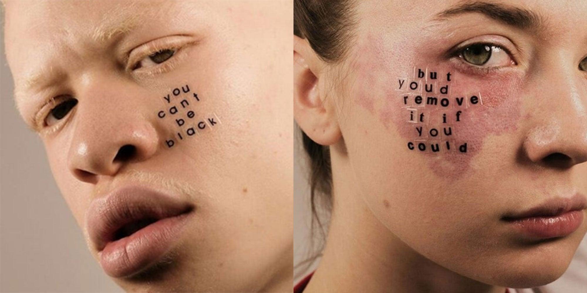 Dwie fotografie: z lewej meżczyzna cierpiący na albinizm z naklejonym na twarzy napisem po angielsku Nie możesz być czarny. Z prawej kobieta z czerwonym znamieniem na twarzy, na którym ma naklejony napis po angielsku Usunęłabyś to, gdybyś mogła.
